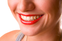 Cost for Snap on Smile